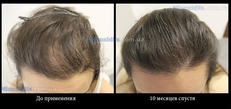 Миноксидил 2% (для женщин) - 2
