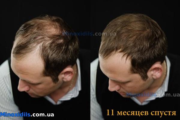 Как часто нужно делать маски для волос от выпадения